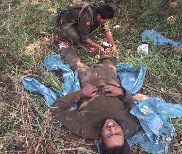 同盟军卫生员为缅军战俘包扎伤口